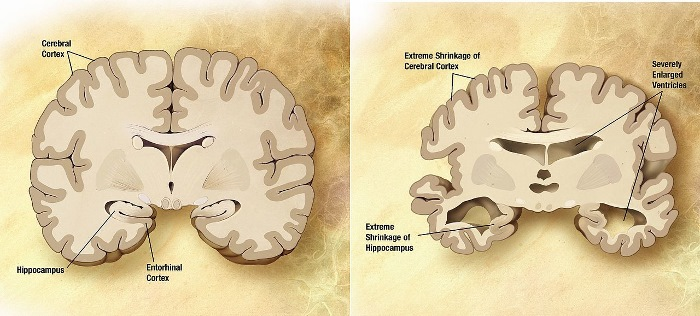 These brain graphs describe how the brains of Alzheimer's patients (left) atrophy and shrink over time. Image: Garrondo, from ADEAR original files, both public domain