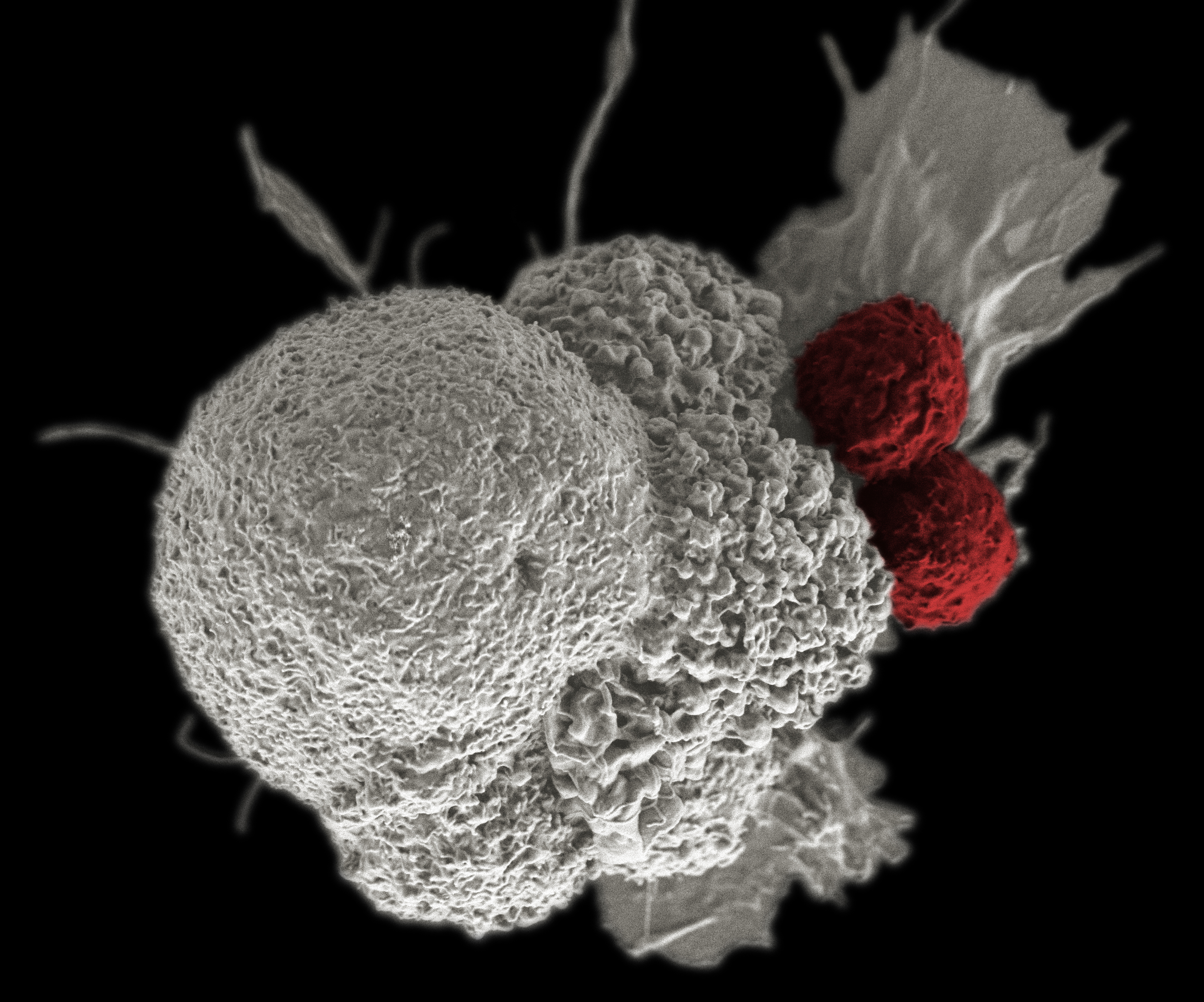 As seen with pseudo-coloured scanning electron microscopy, two cell-killing T-cells (red) attack a squamous mouth cancer cell (white) after a patient received a vaccine containing antigens identified on the tumour. Credit: Rita Elena Serda, National Cancer Institute\Duncan Comprehensive Cancer Center at Baylor College of Medicine