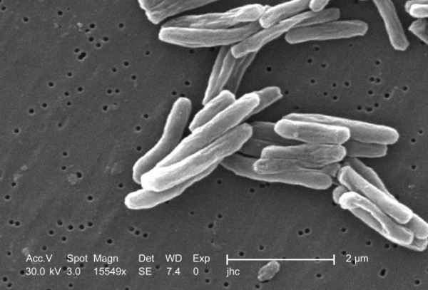 Mycobacterium tuberculosis in the electron microscope. Credit: CDC's Public Health Image Library (PHIL), identification number #8438, public domain