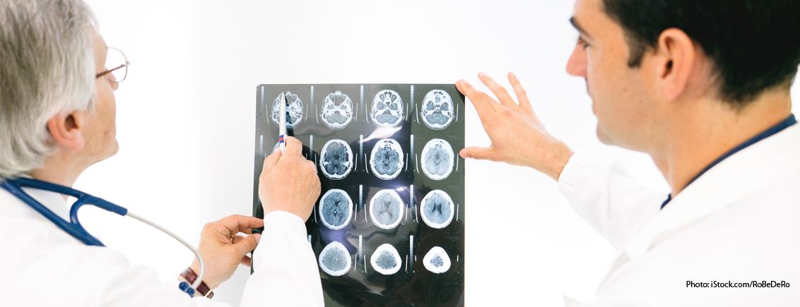 Alzheimer's: Ten Surprising Facts