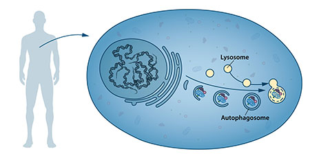 Figure 1: Our cells have different specialized compartments. Lysosomes constitute one such compartment and contain enzymes for digestion of cellular contents. A new type of vesicle called autophagosome was observed within the cell. As the autophagosome forms, it engulfs cellular contents, such as damaged proteins and organelles. Finally, it fuses with the lysosome, where the contents are degraded into smaller constituents. This process provides the cell with nutrients and building blocks for renewal. Image: Nobelprize.org